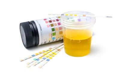pregnancy test with salt - urine