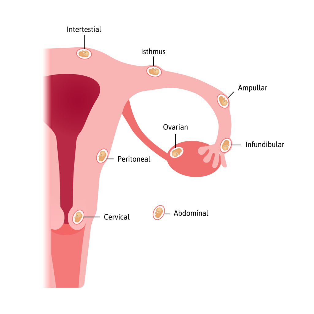 Ectopic pregnancies can occur in the parts of the fallopian tube, abdomen, ovary and cervix