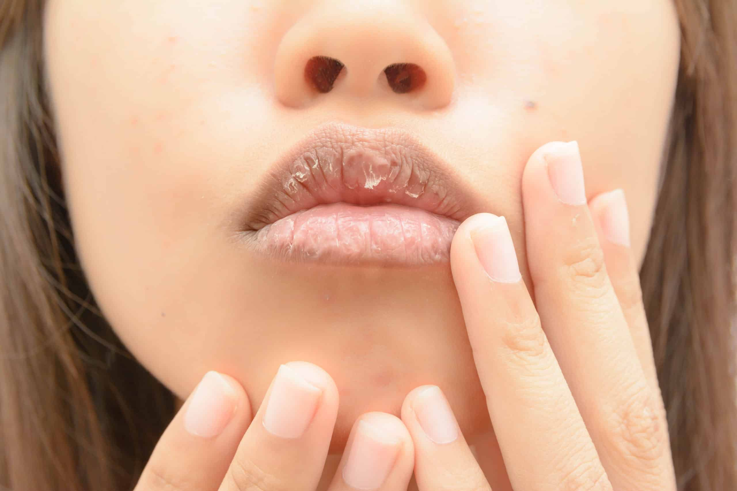 Dry mouth pregnancy